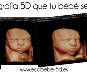ecobebé 5D: La mejor ecografía 5D