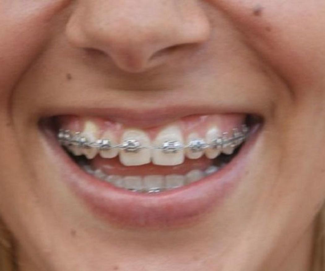 Consejos de higiene oral para pacientes con ortodoncia fija