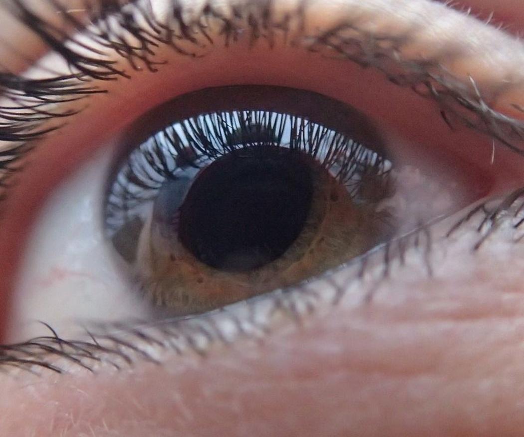 Consejos para controlar el glaucoma