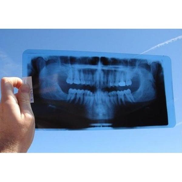 Radiología: Tratamientos de Clínica Dental Gloria Vázquez Pérez,