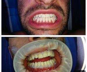 Blanqueamiento dental en Murcia