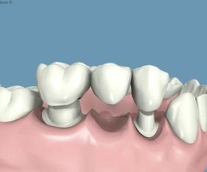 Todos los productos y servicios de Clínicas dentales: Centro Dental Unamuno