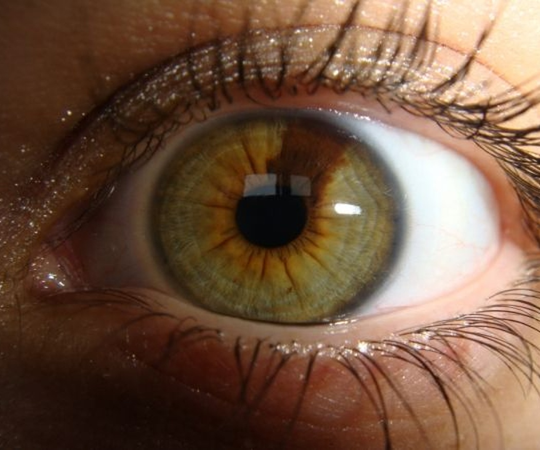 ¿Qué clases de glaucoma existen?
