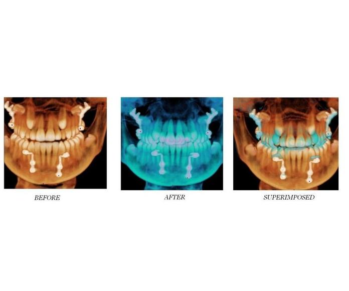 Implantes dentales: Servicios de Clínica Dental Gándara