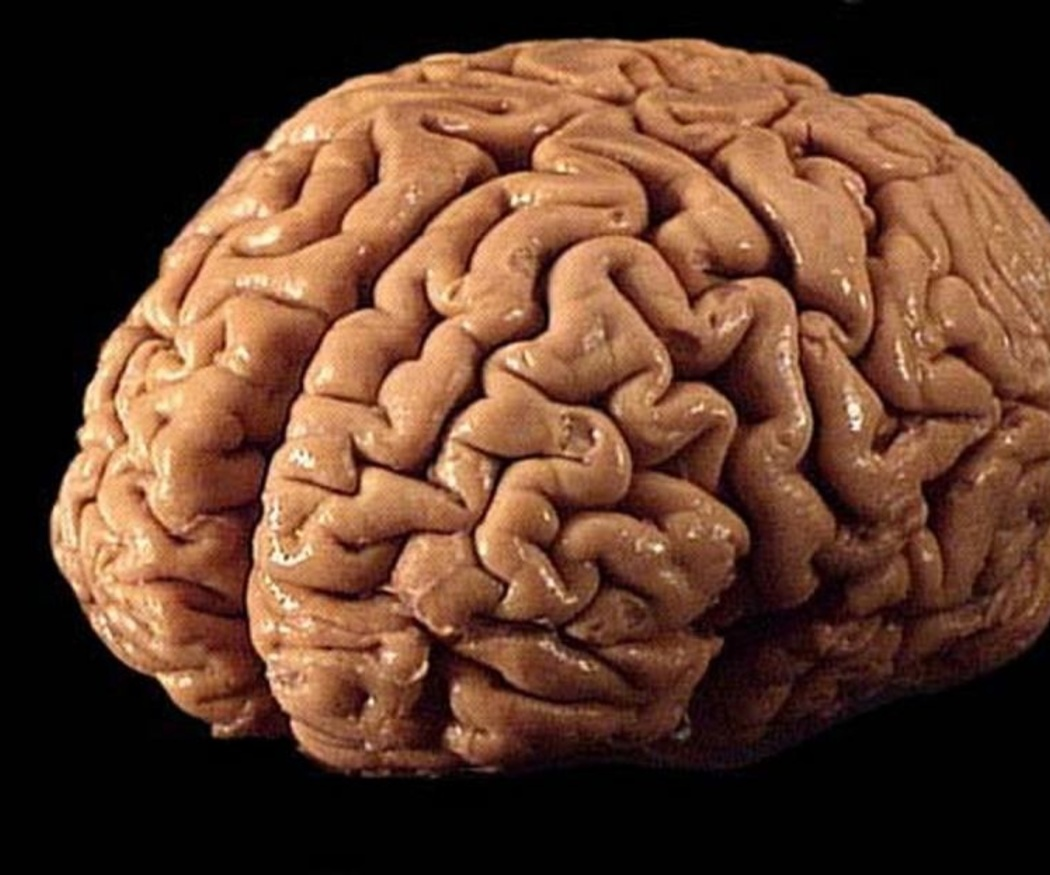 Enfermedades neurológicas más comunes
