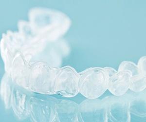 Tipos de ortodoncia invisible