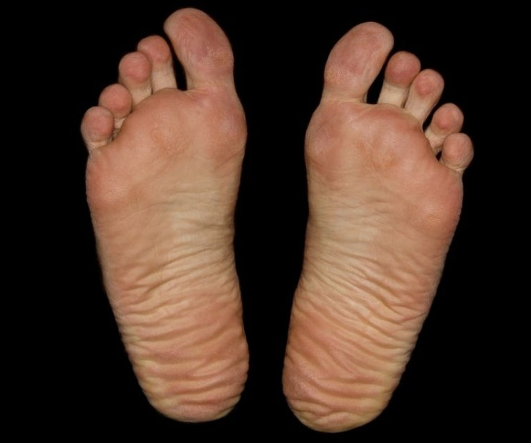 Las durezas de los pies