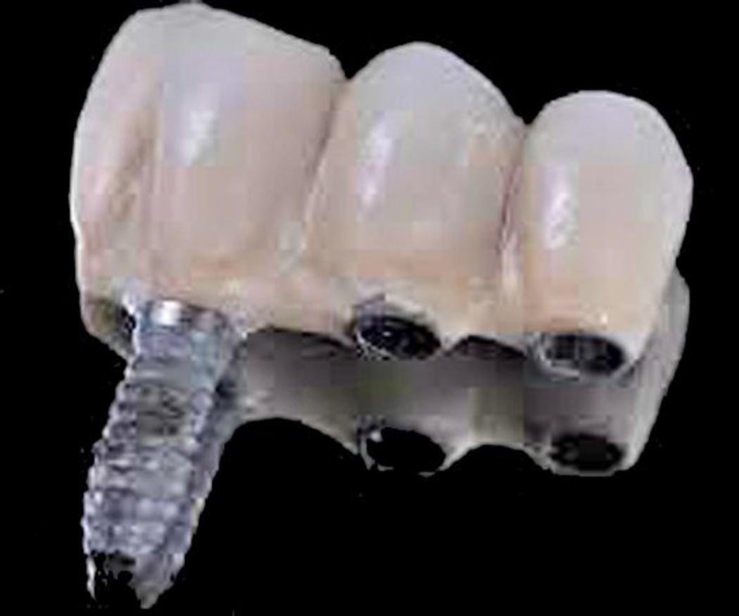 5 mitos sobre los implantes dentales