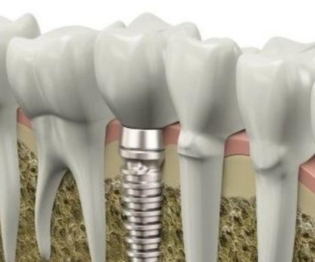 Ventajas de los implantes dentales