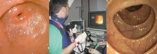 Diagnostico por endoscopia