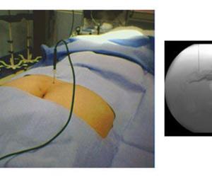 Radiofrecuencia de Nervios y Ganglios