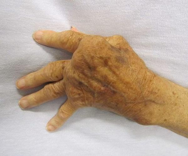 Enfermedades osteoarticulares