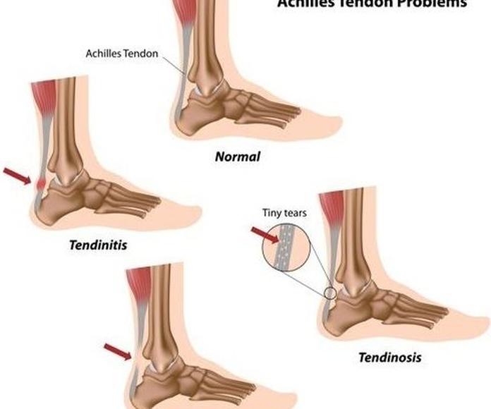 EPI en las Palmas Tratamiento de las Tendinitis, Tendinosis, Roturas Fibrilares