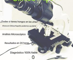 Diagnóstico Onicomicosis Clínica NUPOFIS