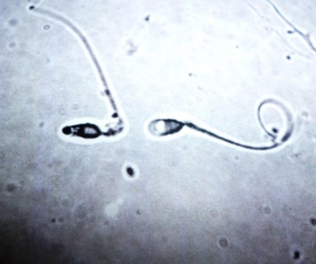 La calidad del esperma: factores positivos y negativos