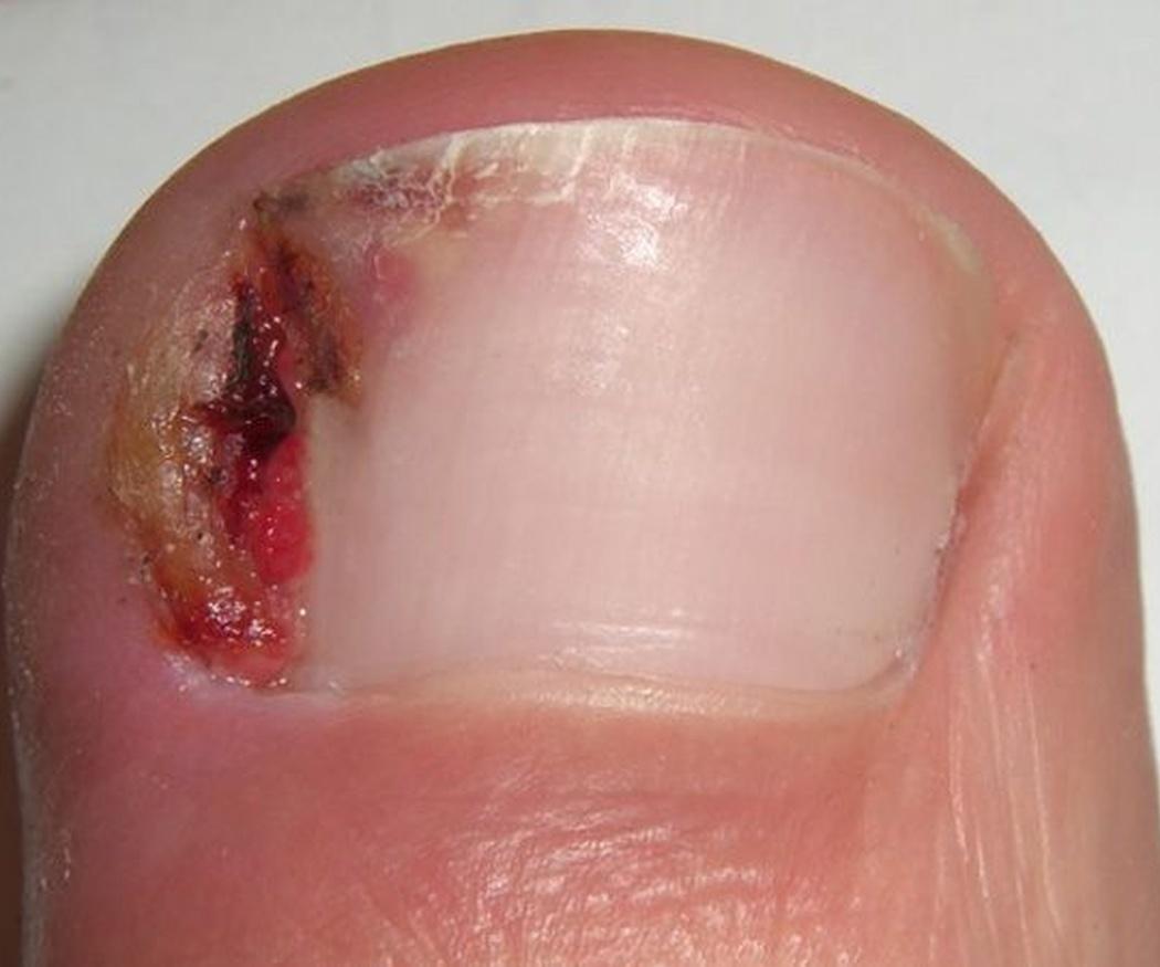 La onicocriptosis o uña encarnada