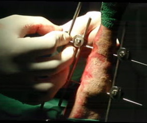 Fijadores externos fractura tibia y peroné; veterinario zona Hortaleza-Canillas
