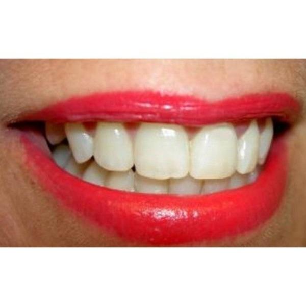 Prótesis: Tratamientos de Clínica Dental Gloria Vázquez Pérez,