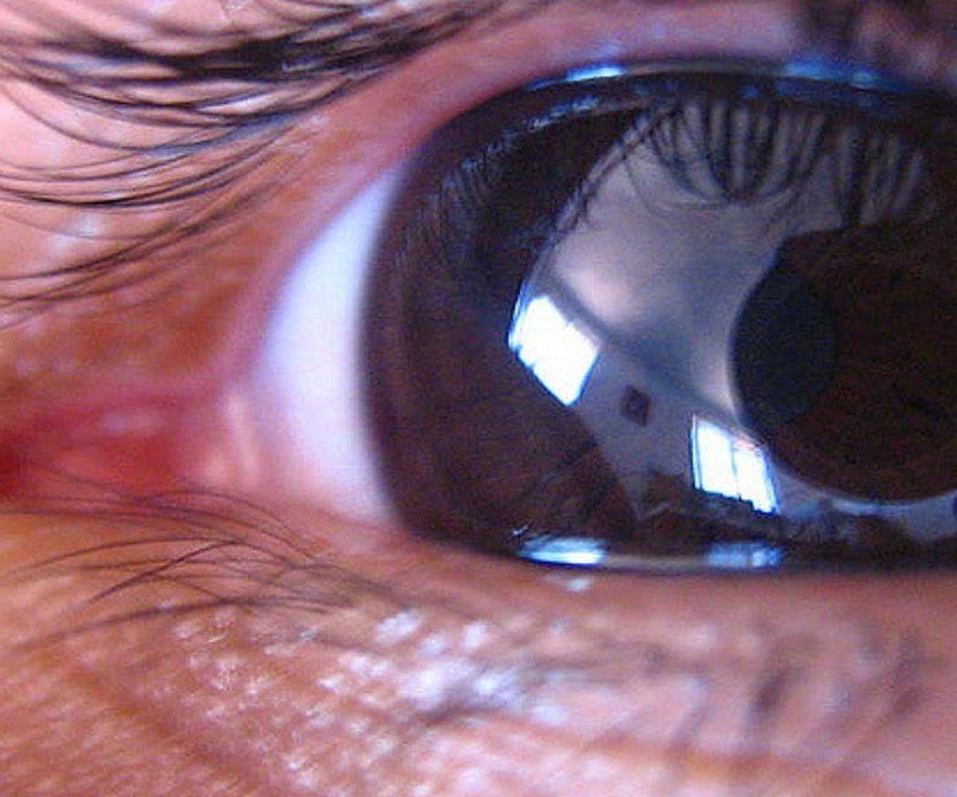 ¿Se puede eliminar el glaucoma?