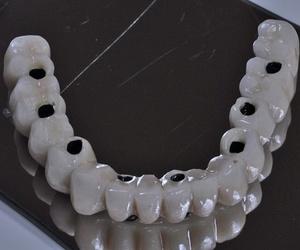 Recomendaciones sobre el cuidado de los implantes dentales