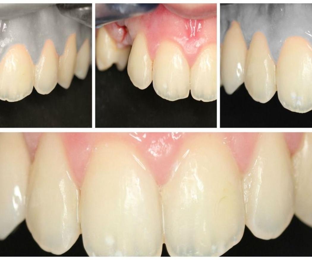 Problemas derivados de la pérdida de una pieza dental