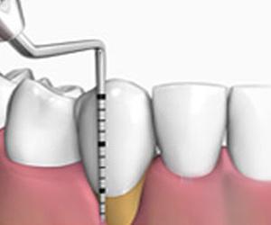 Todos los productos y servicios de Dentistas: Clínica Dental El Llano
