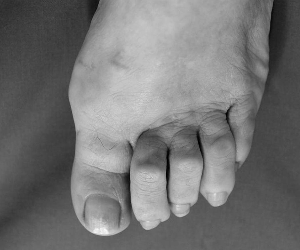 Los dedos en garra, una deformación muy dolorosa