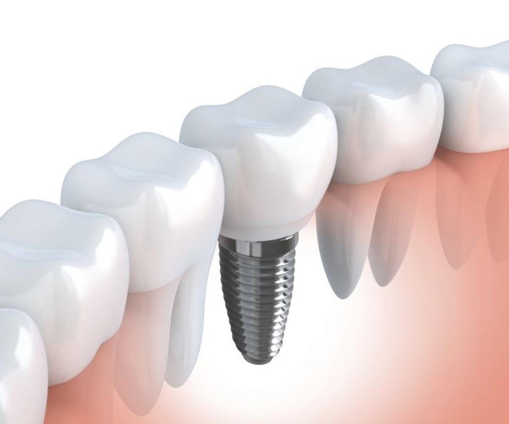 ¿Cómo se sujeta un implante dental?