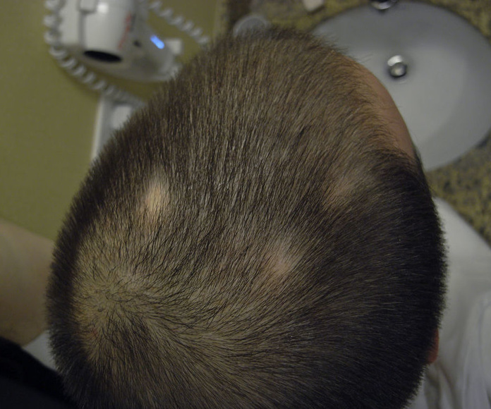 Picores: Tratamientos  de C. Capilar Lorenzo Vila