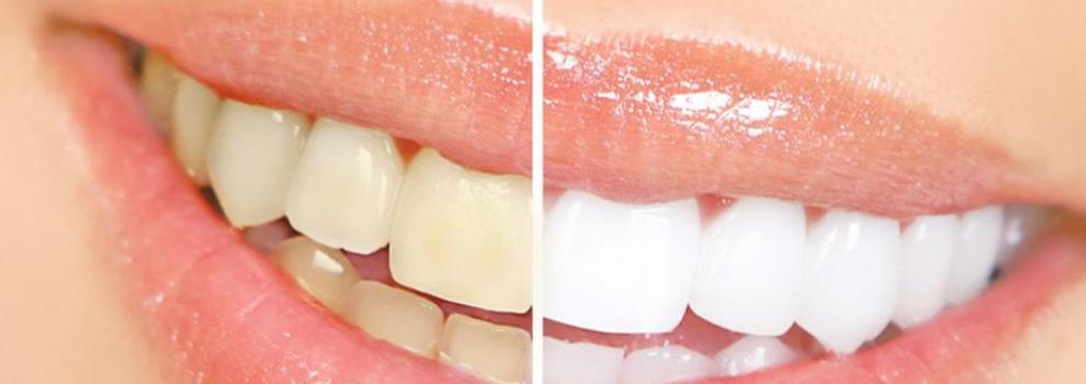 Dentistas en Los Alcázares | Dr. Rafael De la Hoz García