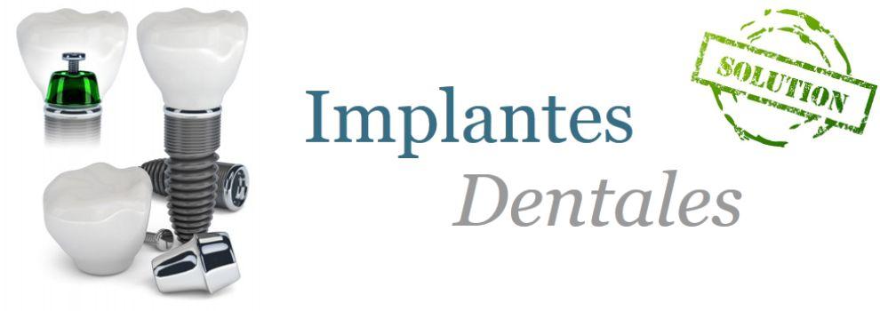Dentistas baratos en la Latina Madrid