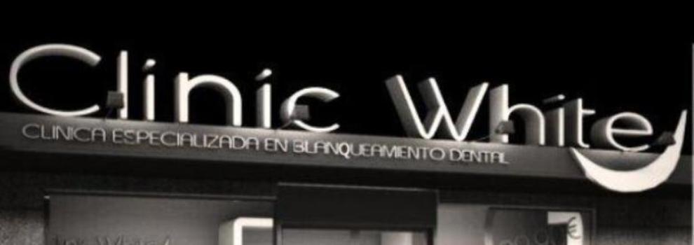 Blanqueamiento dental en Ciudad Linea,l Madrid
