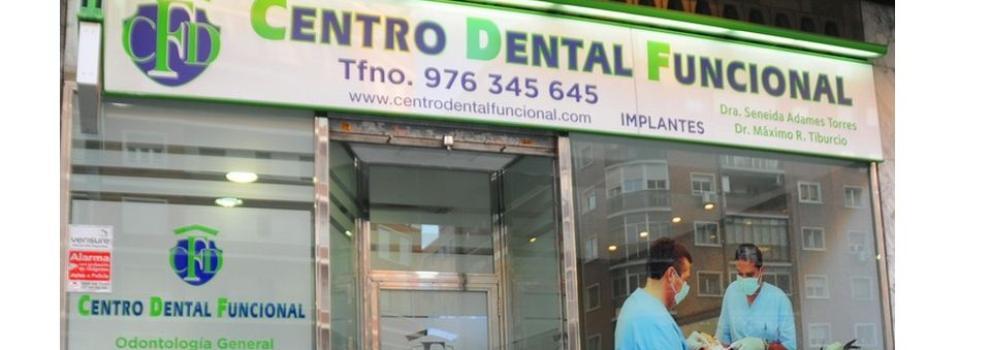 Clínicas dentales en Zaragoza | Centro Dental Funcional