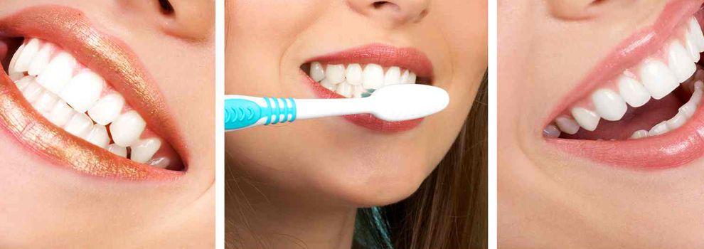 Blanqueamiento dental Tenerife