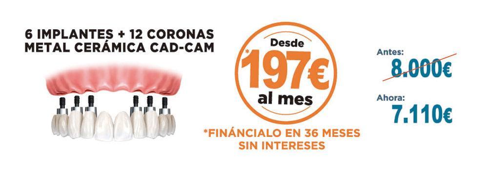 Estética dental en Tetuán Madrid