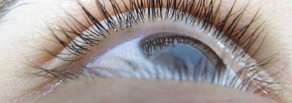 Cirugía láser de ojos Lugo | Clínica Eduardo Iglesias García