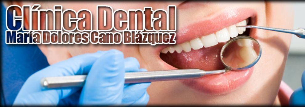 Clínicas odontológicas en Albacete | Clínica Dental Cano Blázquez