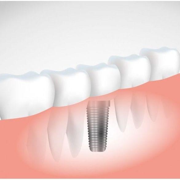 Implantología: Tratamientos de Clínica Blanco Dental