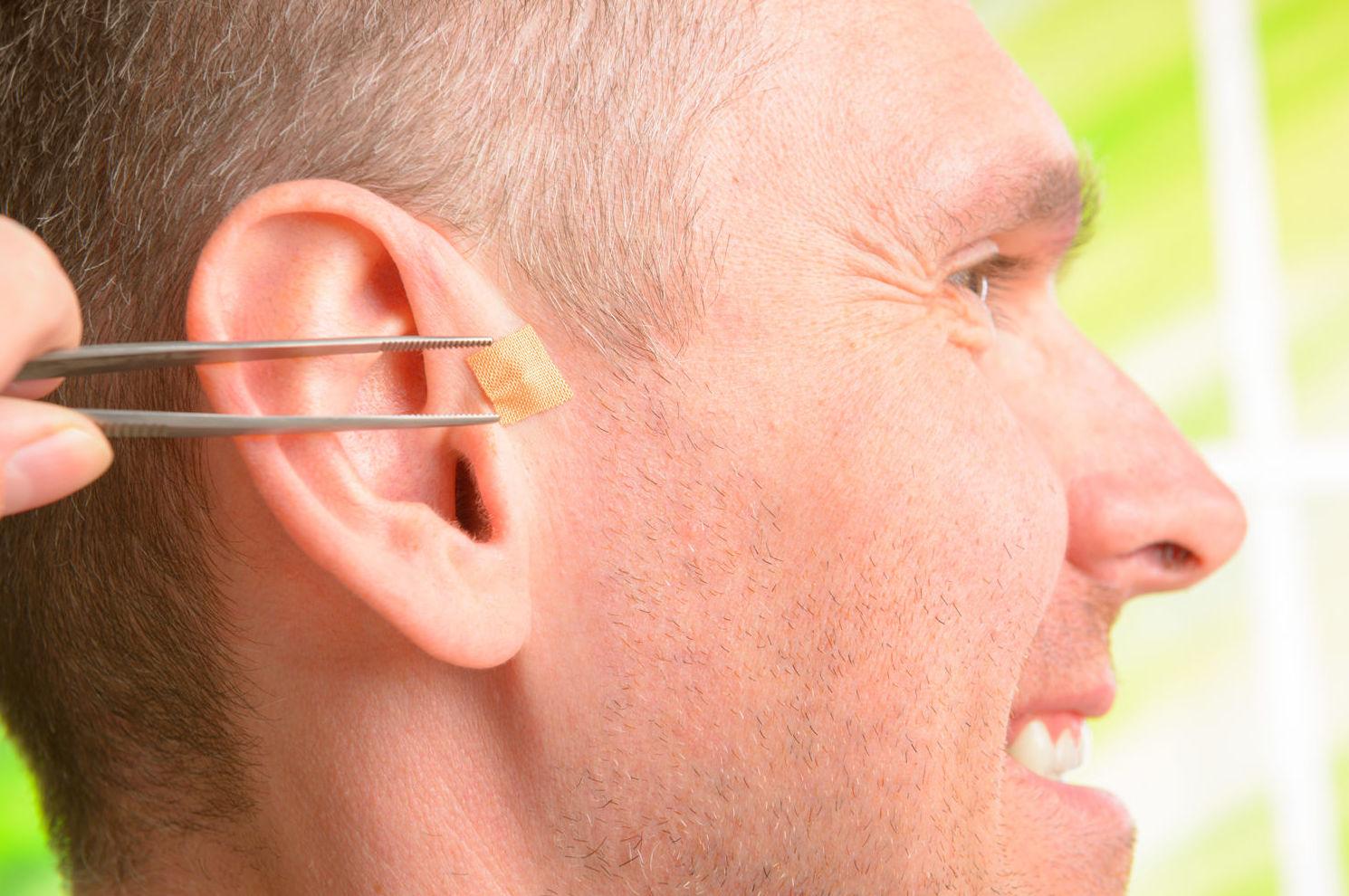 Acupuntura auricular a domicilio