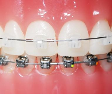 Ortodoncia sistema Damon. Brackets transparentes
