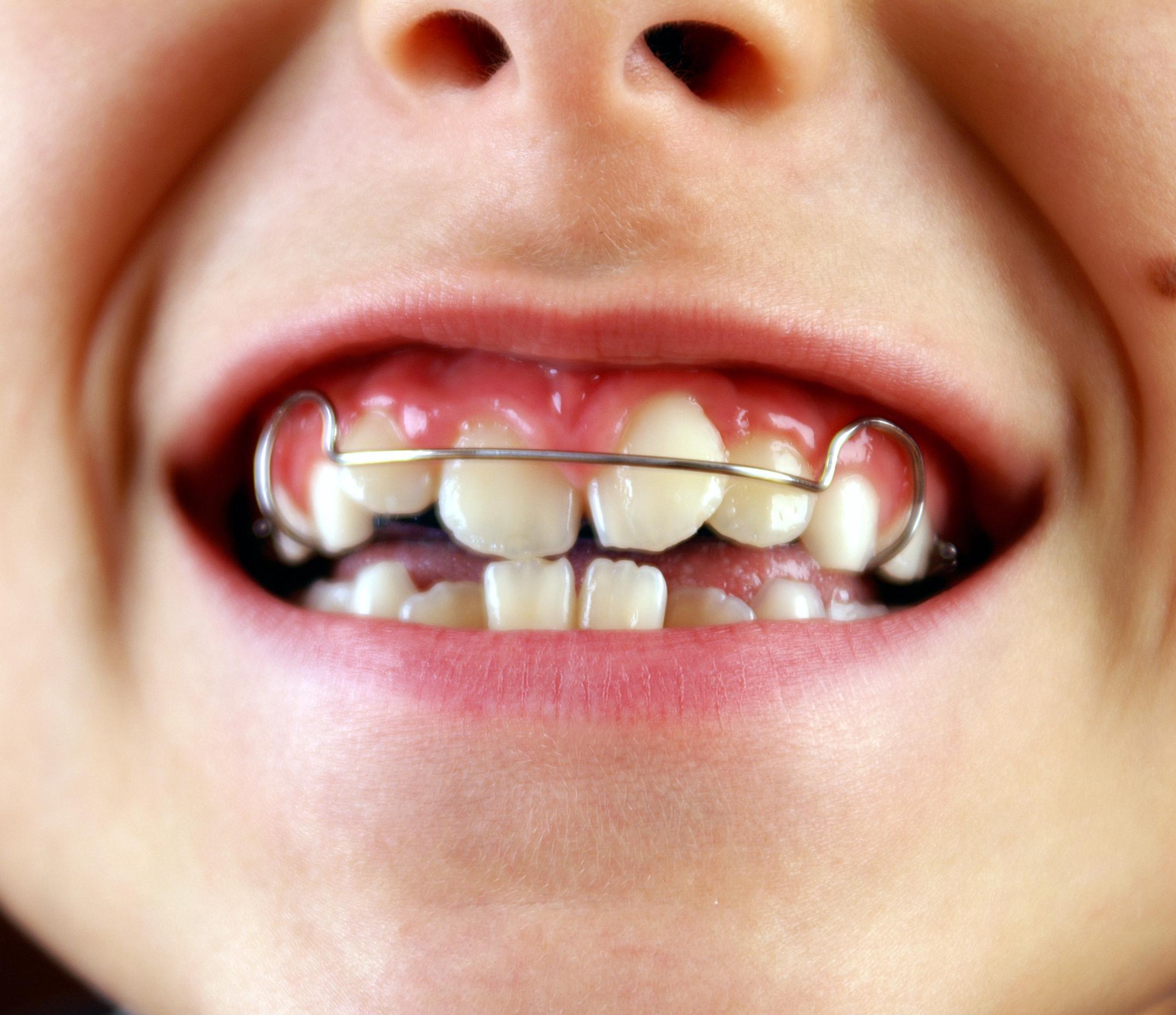 Скобки на зубы как их ставят