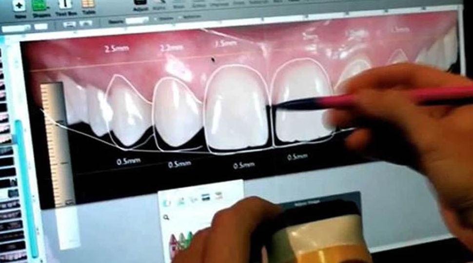 El Diseño Digital de la Sonrisa, el último logro en estética dental