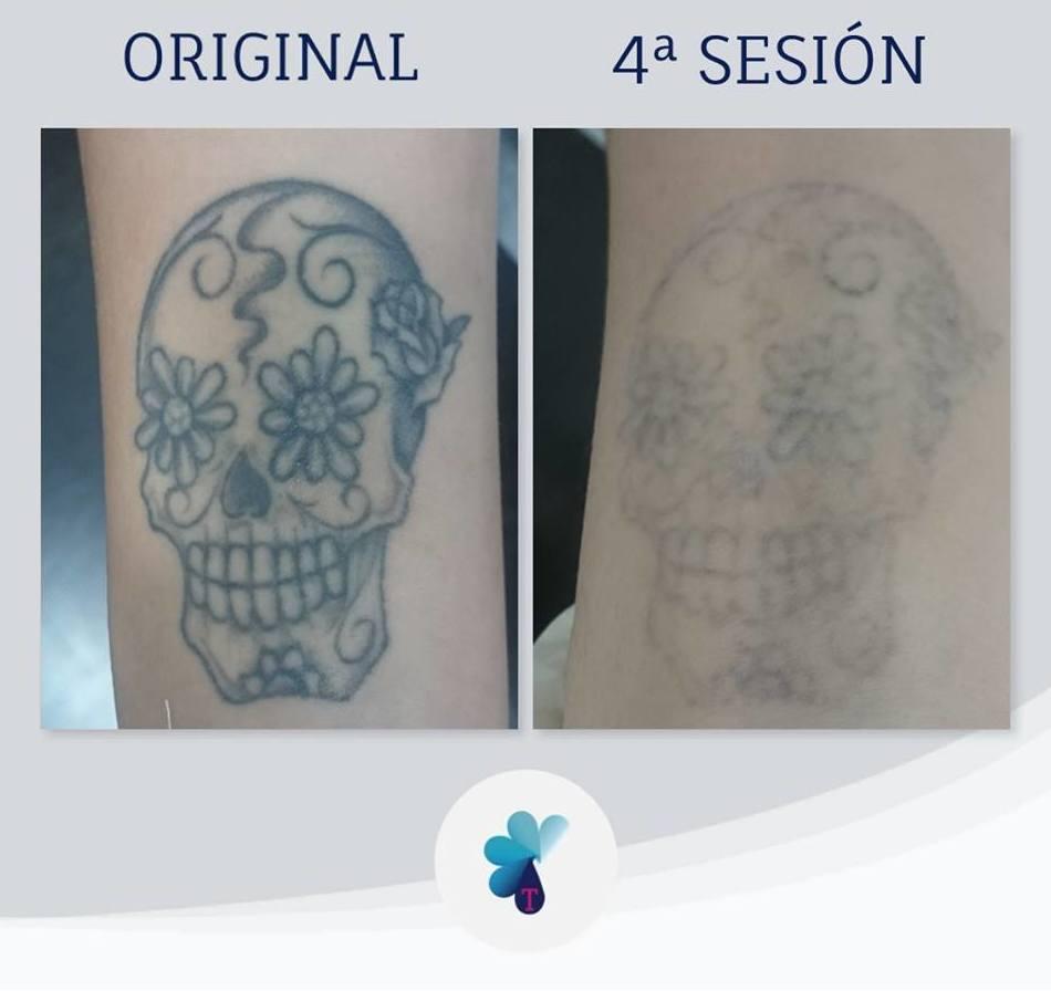 Foto 255 de Tatuajes en València   TATUALIA-Valencia