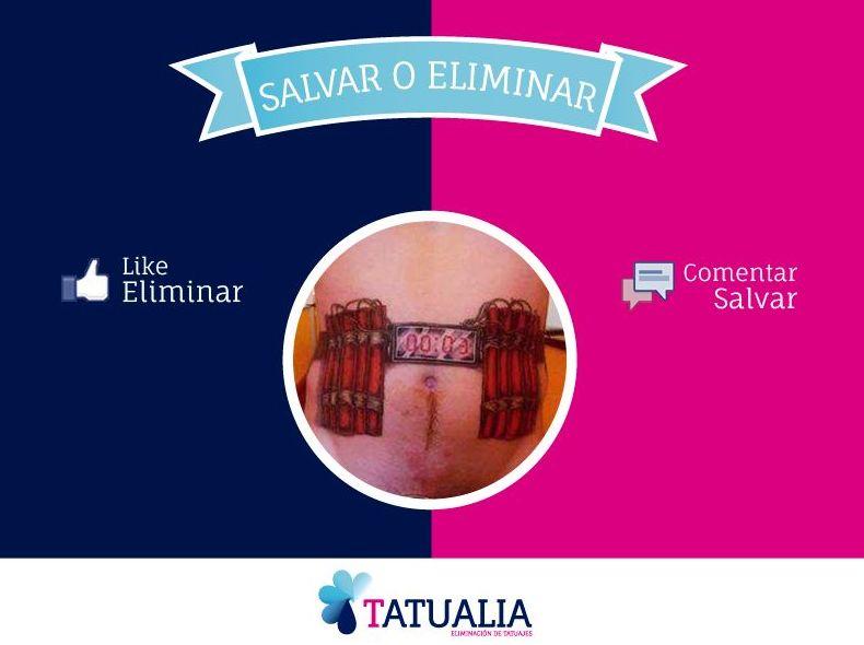 Te eliminamos ese tatuaje incomodo ....INFO 601 205 194