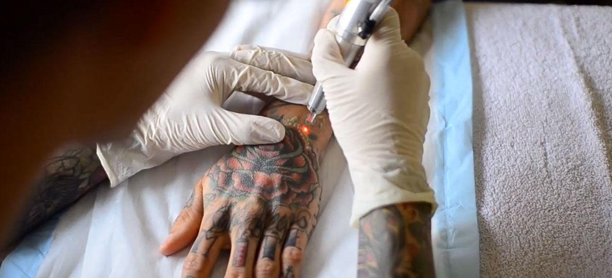 Hoy en día un tatuaje no tiene por qué ser permanente.