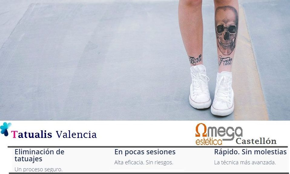 Eliminar quitar o borrar tu tatuaje en Valencia o Castellón