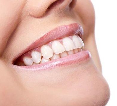 blanqueamiento dental bilbao
