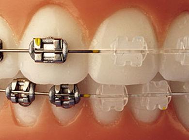 Ortodoncia: Tratamientos de Clínica Dental Nora Accaputo de Vizcaya