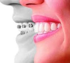 Ortodoncia: Servicios  de Clínica Dental Errota