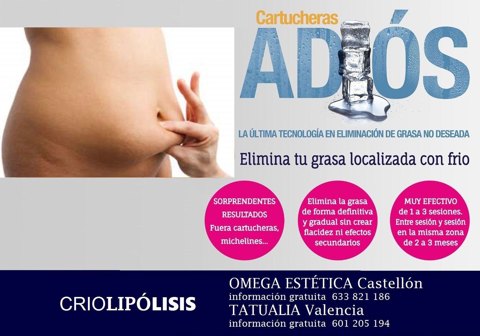 Criolipósis, elimina tu grasa localizada con frío
